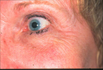 Cosmetic And Reconstructive Surgery Of The Eyelids Orbits